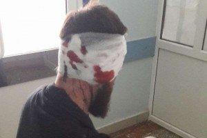 В Харькове среди белого дня избили депутата облсовета (ФОТО)