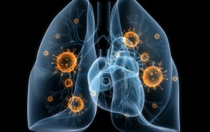 Tuberkulez2